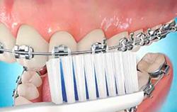 higiene-aparelho-ortodontico-01