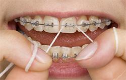higiene-aparelho-ortodontico