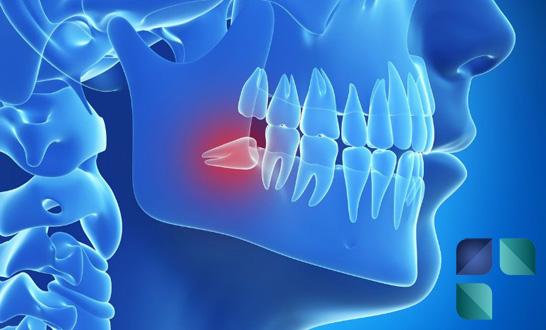 siso-incluso-mass-odontologia