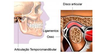 Bruxismo, ATM, DTM e Dor Orofacial Tratamento em Curitiba