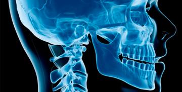 Ortodontia e Ortopedia Facial em Curitiba