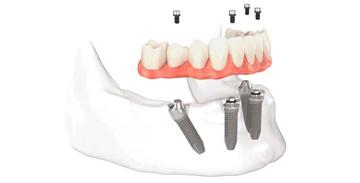 Implante Dentário e Carga Imediata em Curitiba