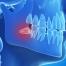 Cirurgias Dentais, Gengivais e Faciais em Curitiba